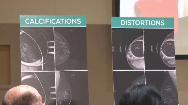 [TLMD - McAllen] Texas: Seguro médico ahora podría cubrir mamografías