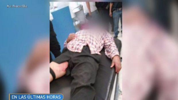 Violencia deja un niño muerto y heridos en Michoacán (IMAGENES FUERTES)