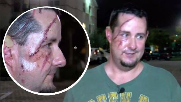 [TLMD - LV] Desfigurado tras ataque de oso cuando paseaba el perro