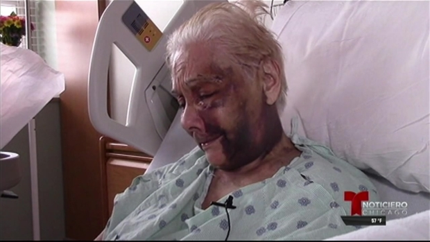 Anciano es atacado brutalmente con un bastón