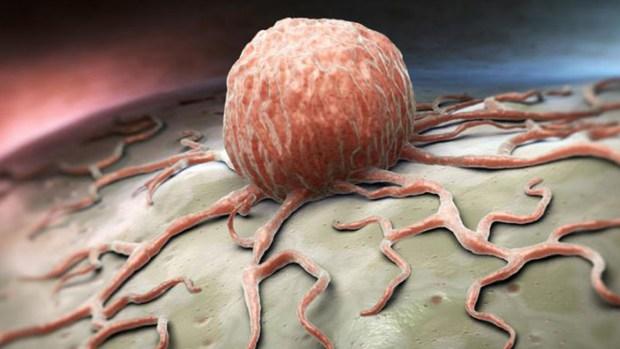 Qué es el temible cáncer y cómo prevenirlo