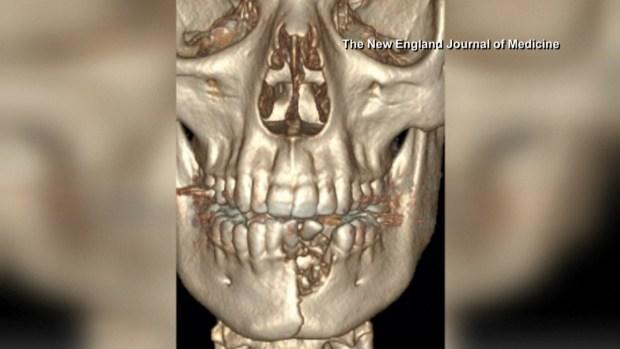 [TLMD - LV] Cigarrillo eléctrico le explota dentro de la boca a menor