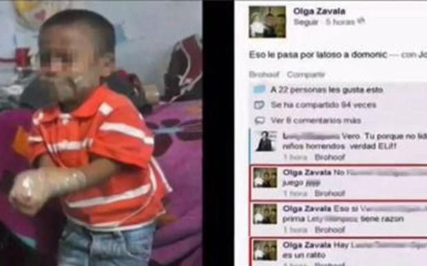 Video: México: Investigan caso de niño atado