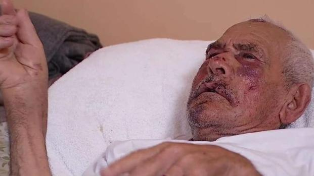 Brutal golpiza a abuelito que caminaba por su vecindario