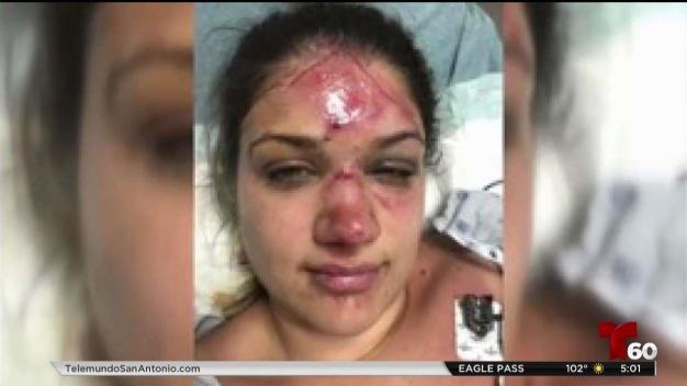 Mujer es golpeada brutalmente en el rio Guadalupe