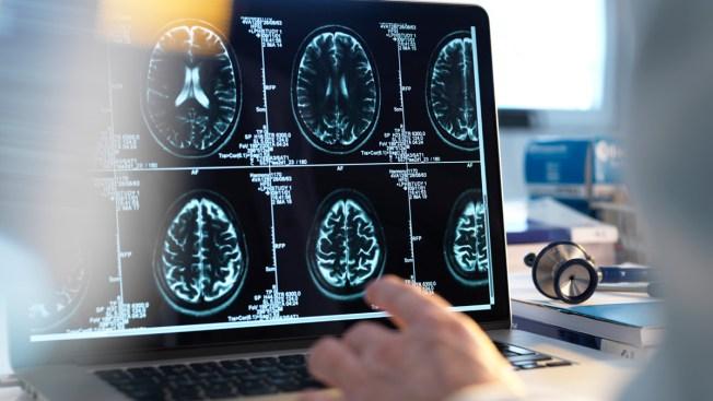 Conoce los síntomas y las señales de un derrame cerebral