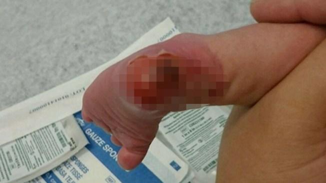 Padres dicen que enfermera quemó a su bebé