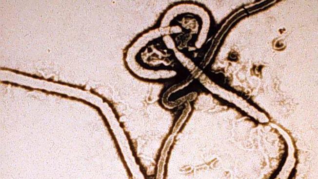 Frisco: Posible segundo caso de ébola